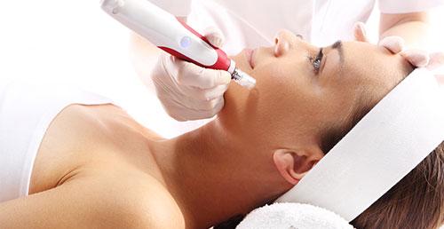 kosmetik-nettetal-microneedling